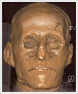 Mummy of Ramses III in 3-D reconstruction, (c) Albert Zink